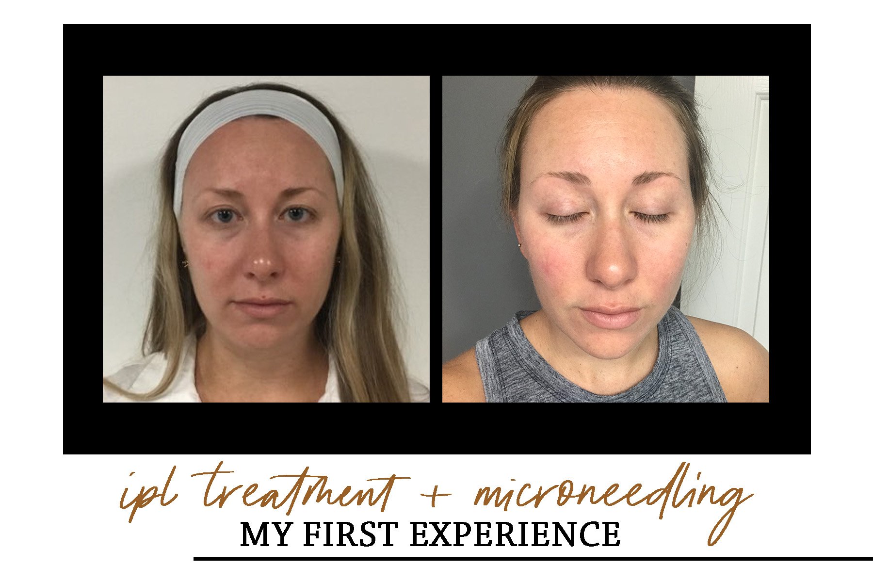 MY FIRST IPL + MICRONEEDLING EXPERIENCE WITH JAZZI COSMETICS